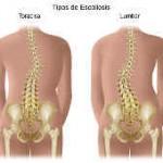 Cuida tu columna vertebral, posturas correctas. Dolores de espalda.