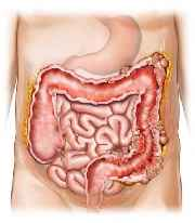 intestino grueso y diverticulos