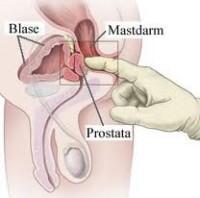 Prevenir el cáncer de próstata es lo indicado.