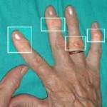 Tratamiento de las encías y gingivitis mejora la artritis.