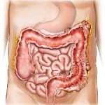Tratamiento natural de la diverticulosis. Diverticulitis.