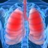Los pulmones. Enfermedades de los pulmones.