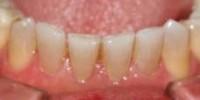 Mejorar los dientes manchados.